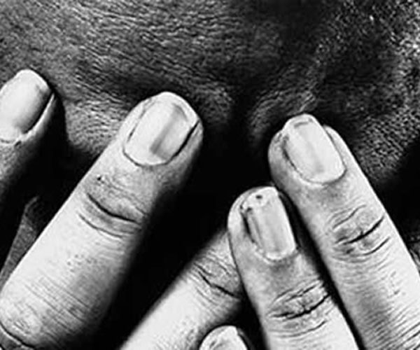 The hidden Crime – Violence against Men